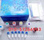 猴子乙酰胆碱受体抗体含量检测,AChRab ELISA测定试剂盒