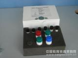 绵羊(IL-1)elisa试剂盒厂家,白介素1Elisa试剂盒价格