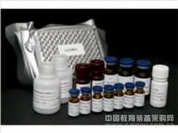 人抗细胞膜DNA抗体(cmDNA)ELISA试剂盒