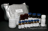人乙脑抗体IgM(JE-IgM)ELISA试剂盒