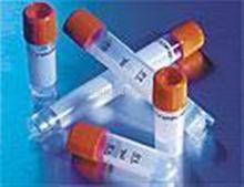 胆汁酸受体抗体