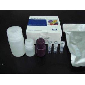 大鼠免疫球蛋白E(IgE)ELISA试剂盒
