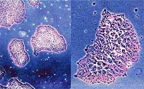 中科院细胞库供应 早幼粒急性白血病细胞株 HL-60