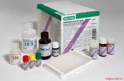 大鼠碳酸酐酶2 ELISA试剂盒