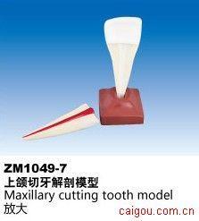 上颌切牙解剖模型