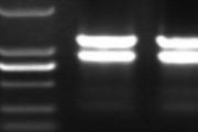 RNA提取常见问题及注意事项