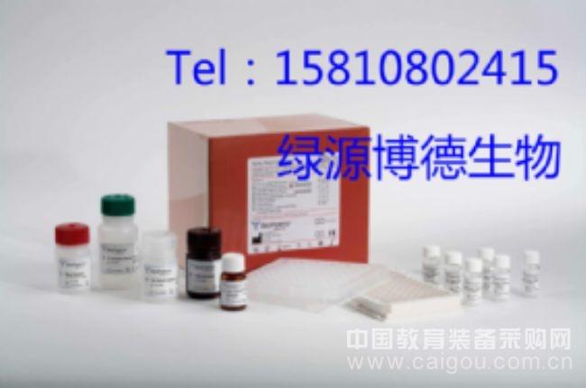 检测PGDS含量酶免试剂盒,小鼠前列腺素D合成酶ELISA Kit