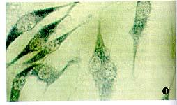 美国ATCC 人宫颈癌细胞株 Hela P10s-11F