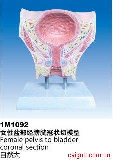女性盆部膀胱冠状切模型