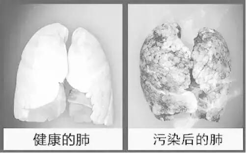 雾霾为何引起咳嗽 对肺有多大危害?